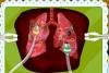 莫里的肺部手术